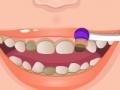 Igra Rapunzel Rotten Teeth