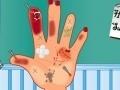 Hand Surgery ליּפש