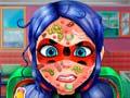 Permainan Ladybug Face Skin Surgery