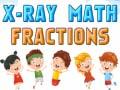 Igra X-Ray Math Fractions
